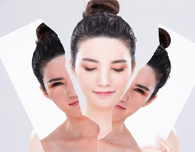 Tiêu chí lựa chọn mua sản phẩm collagen