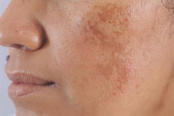 Tác dụng của Tretinoin giúp cải thiện nám da, tàn nhang